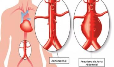 Estudo sugere que o uso do índice de tamanho aórtico pode melhorar os resultados de reparo AAA em mulheres