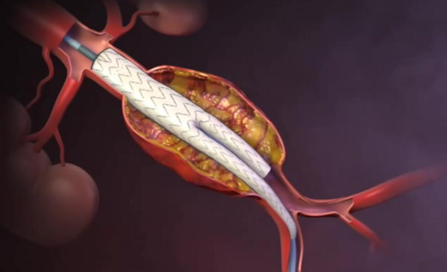 Estudo OVER mostra sobrevivência a longo prazo similar para EVAR em comparação com cirurgia convencional