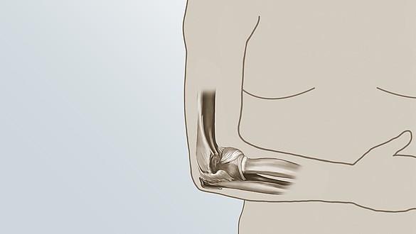 """Resultados iniciais promissores com a embolização no tratamento do """"cotovelo de tenista"""" são apresentados no SIR 2019"""